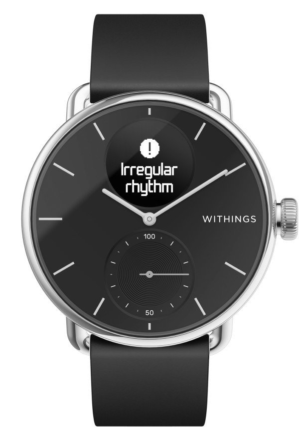 Withings ScanWatch has the one function everybody needs the Apple Watch had